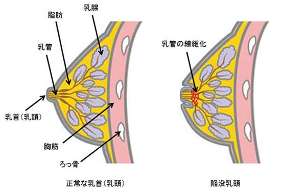乳頭 陥没 眼科よくある質問 視神経乳頭陥没とは? たかはし眼科クリニック 小金井