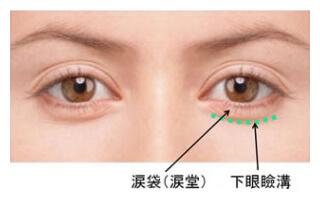 目の下涙袋腫れ