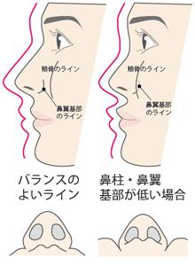 プロテーゼ 鼻翼 基部