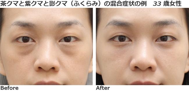 目の下 の クマ 整形 目の下のクマ治療 : 二重まぶた(二重瞼)・目もと(目元)